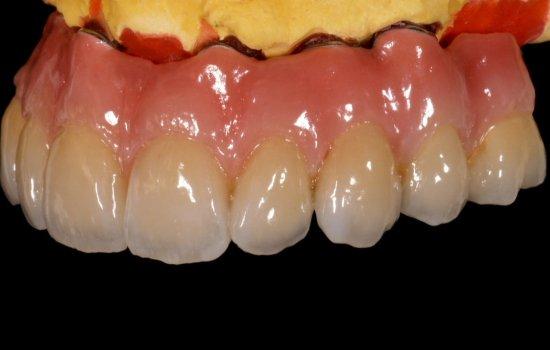 دندانپزشک خوب چه کسی است ؟