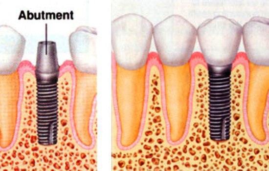 کاشت دندان چگونه انجام می شود ؟