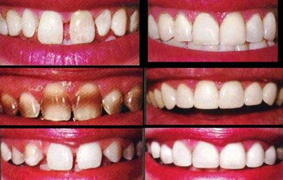 قیمت لمینت دندان چگونه است ؟