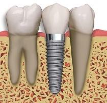 کاشت دندان ایمپلنت