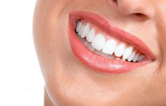 زیبایی خنده شما به چه عواملی بستگی دارد؟